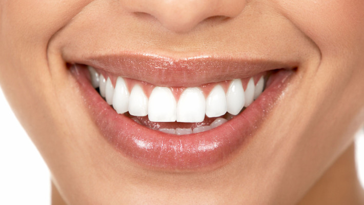 Why We Use Kor Teeth Whitening / Deep Bleaching