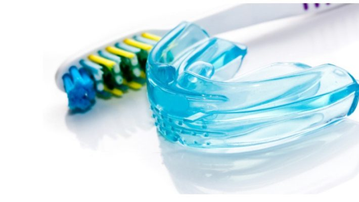 Why Custom Made Mouthguards Are Essential For Sport