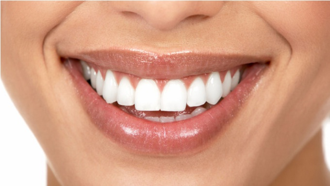 Teeth Whitening is one of the many dental services we offer in-house at Sunshine Coast Smile Centre