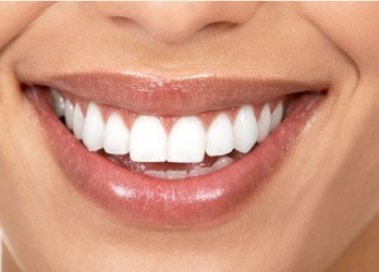 At Sunshine Coast Smile Centre we use Kor Bleaching for our Teeth Whitening