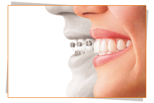 Choose Teeth straightening with Invisalign from Sunshine Coast Smile Centre to achieve a straight smile
