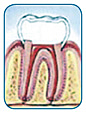 Endodontic treatment complete with restoration