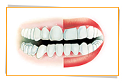 Gingivitis is the condition when the gums become inflamed, red, swollen, tender and bleed easily.