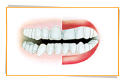An example of good Gum Health indicates that healthy gums are pale pink, firm and look speckled.