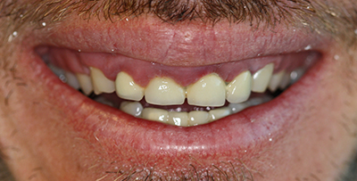 gumlift and porcelain crowns before
