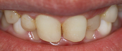 Implant bridges and composite bonding before
