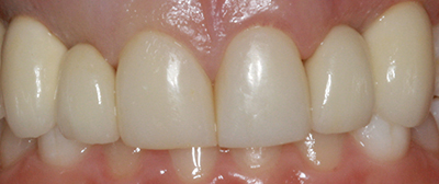 Implant bridges and composite bonding after