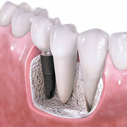 Dental Implants Sunshine Coast