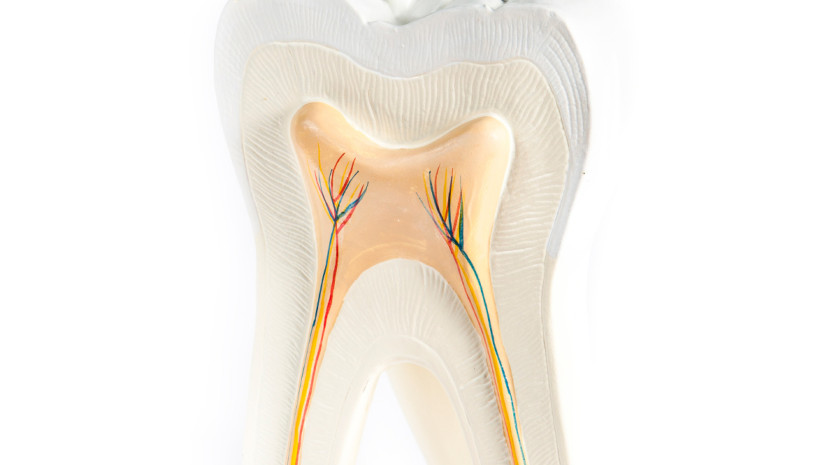 Root Canal Treatment Sunshine Coast