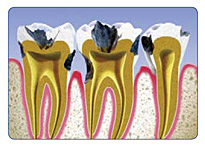 Root Canal Tooth Decay
