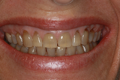 Whitening and composite bonding before
