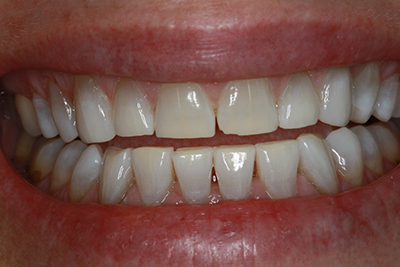 Whitening and composite bonding after