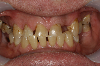 Whitening, composite bonding and partial denture before
