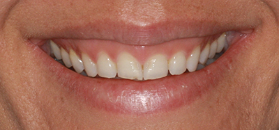 Whitening, gumlift, porcelain veneers before