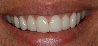Whitening, gumlift, porcelain veneers after